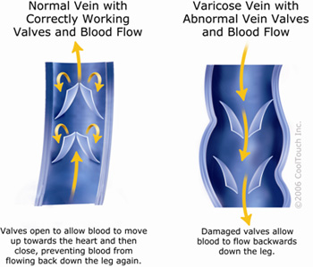 Vein Anatomy & Physiology at lavaricoseveincenter.com